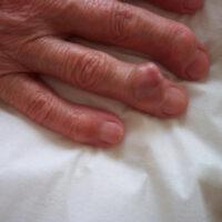 Подагра (подагрический артрит). Симптомы болезни