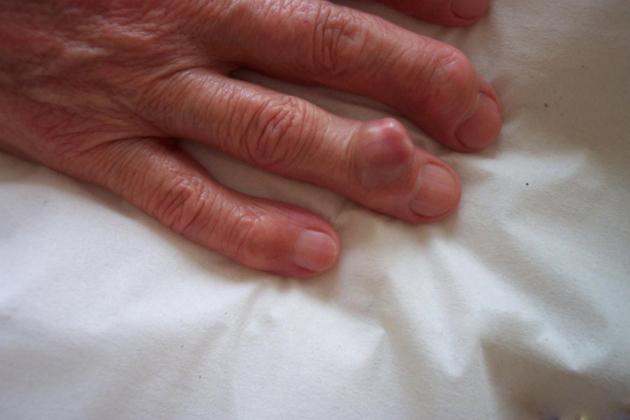 Тофус — симптом подагры